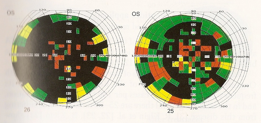 Figure Six: A field of vision test, upon admission (left) with a normal vision of 8.5% and after treatment with Peptide Bioregulators (right) with a normal vision of 29.6%
