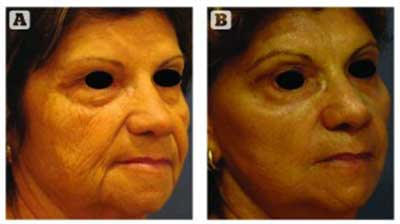 Figure 3 Patient (A) before and (B) 8 weeks after face lift