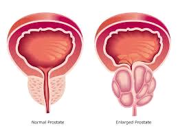 normal v enlarged prostate
