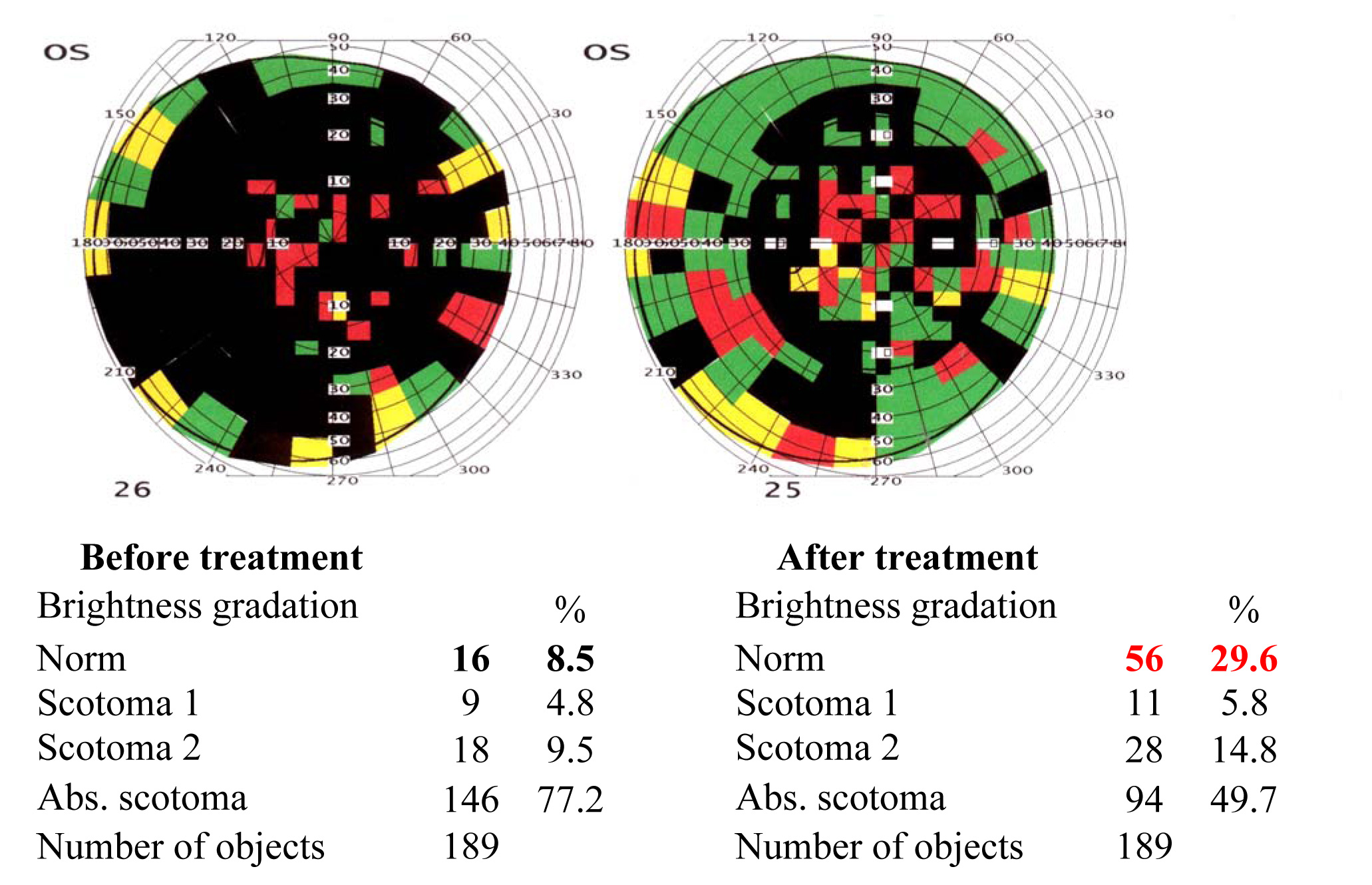 Results of the visual functions tests before and after the treatment course 2