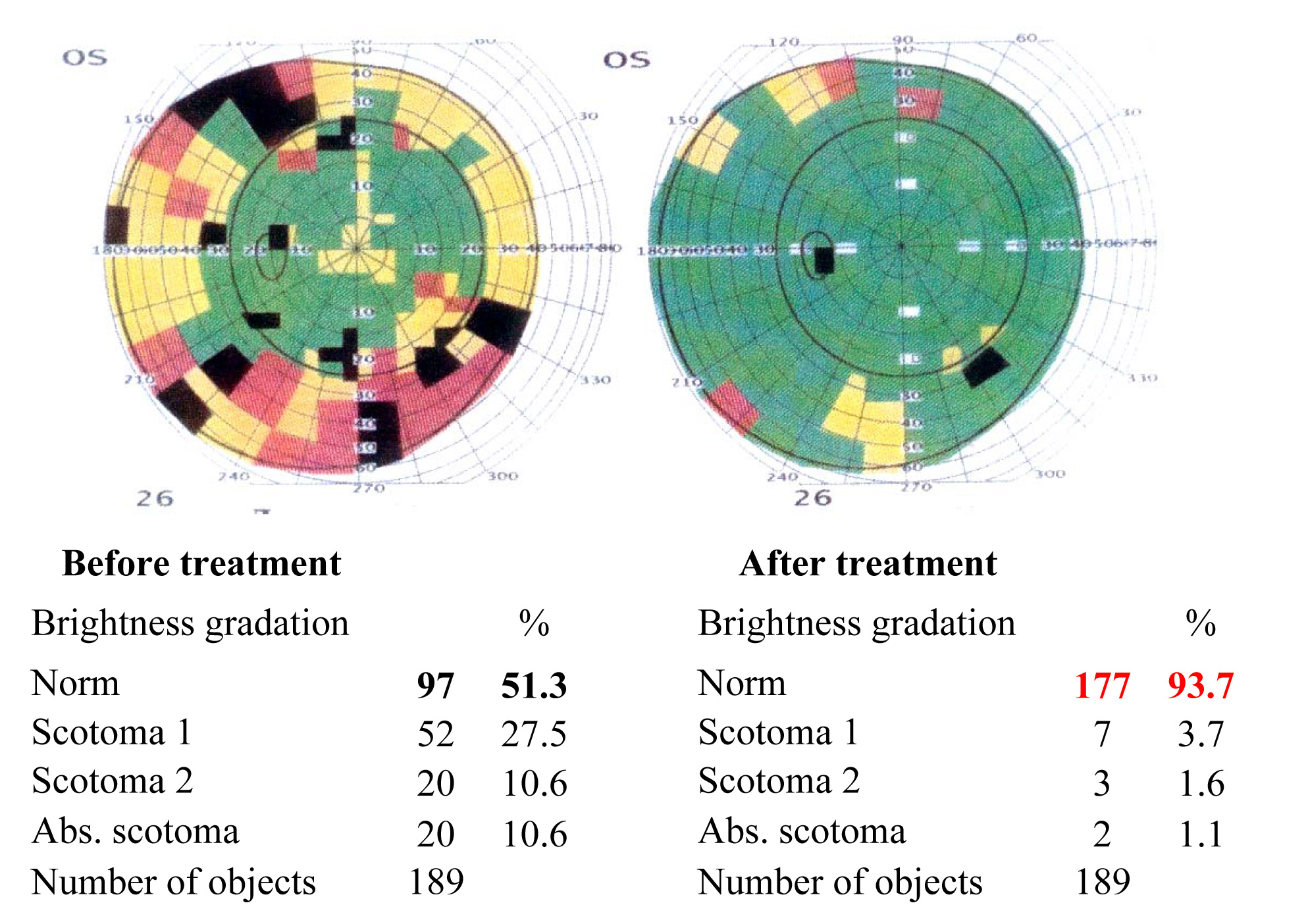 Results of the visual functions tests before and after the treatment course