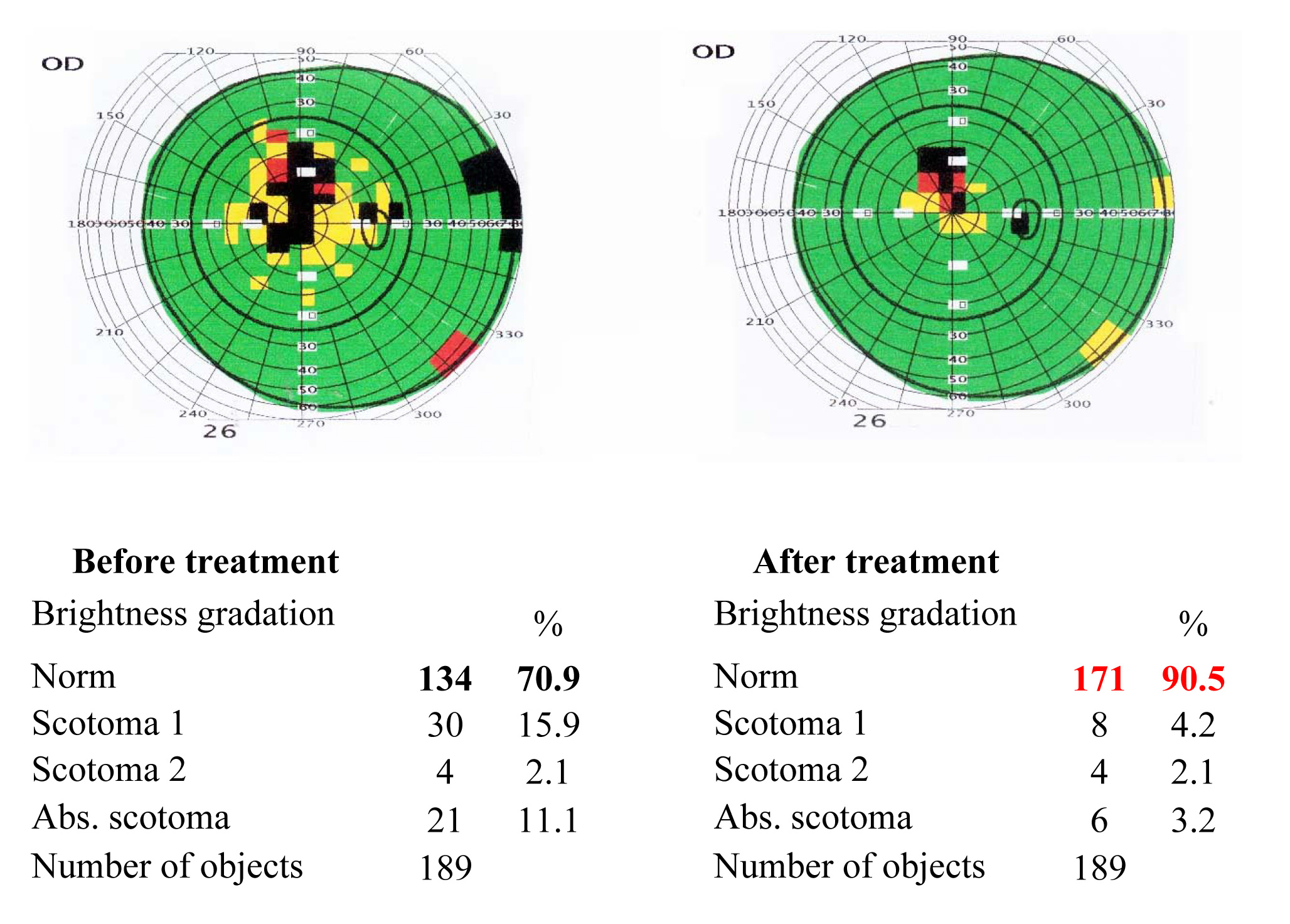 Results of the visual functions tests before and after the treatment course 3