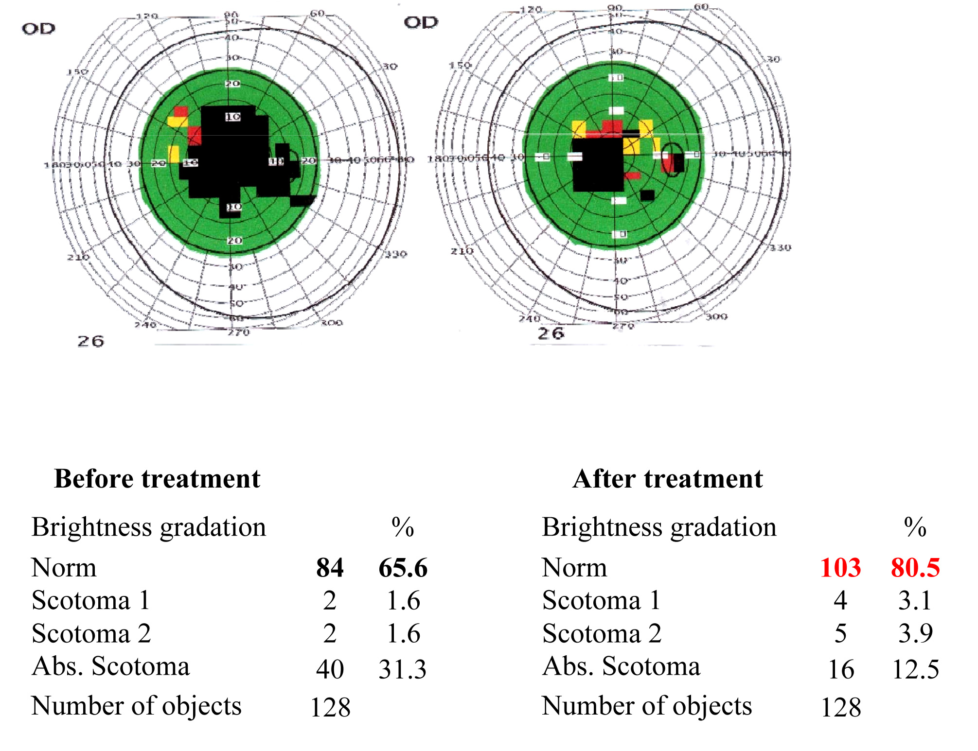 Results of the visual functions tests before and after the treatment course 7
